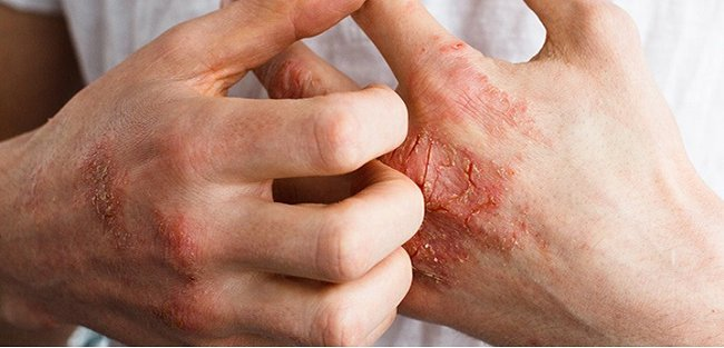 Causes of psoriatic arthritis