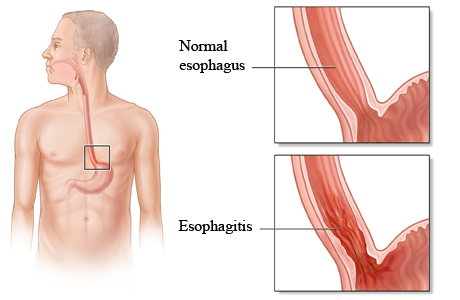 What is esophagitis